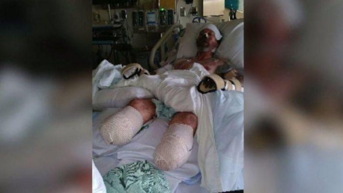 [VIDÉO] Amputé des quatre membres après avoir été léché par un chien