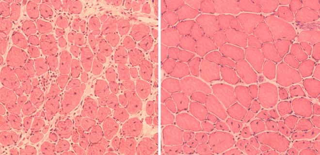 mice-muscle-cells
