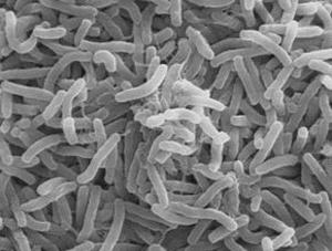 Souche de choléra vue au microscopeCrédits