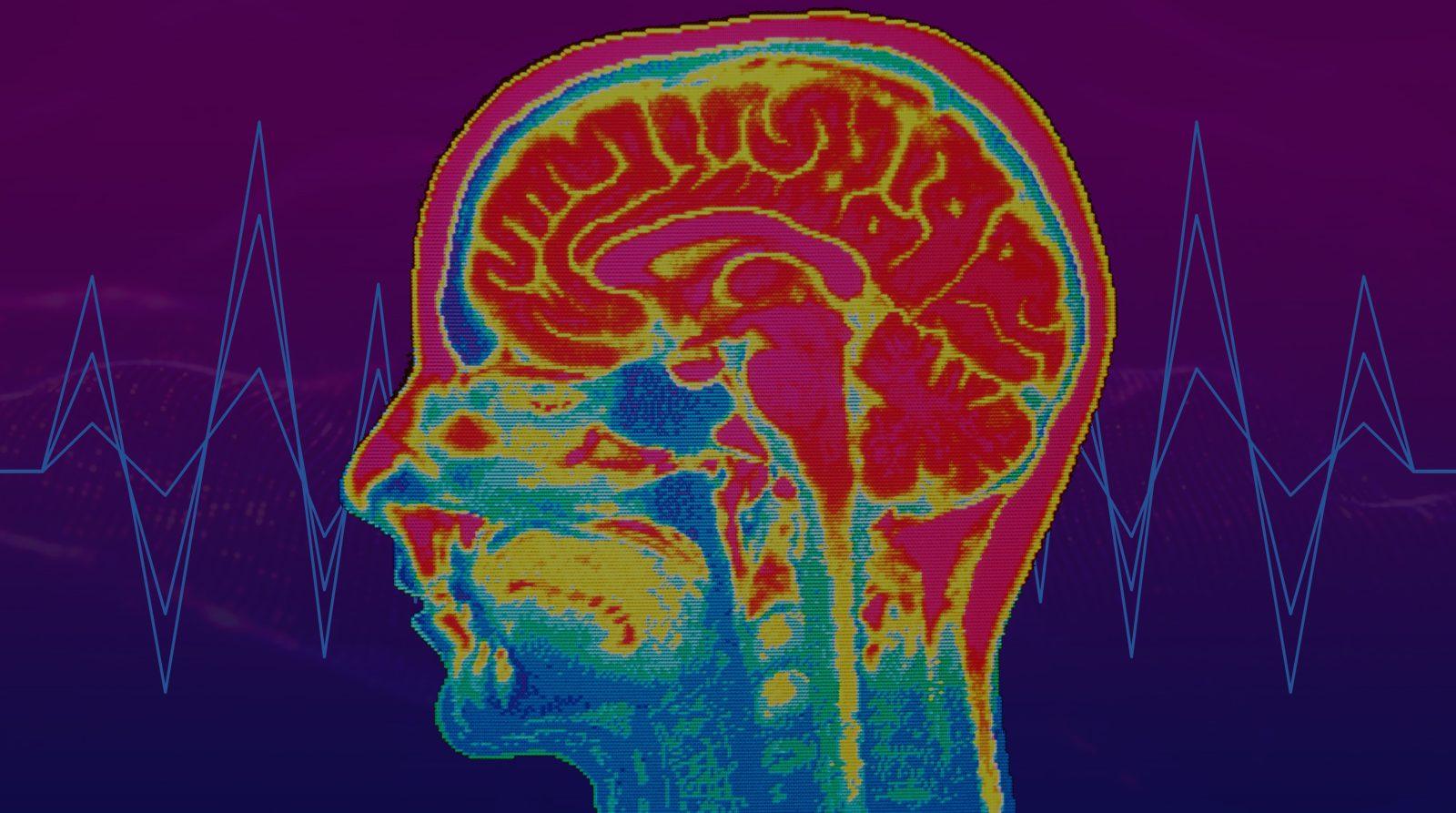 Comment l'intelligence artificielle peut sauver la vie de patients dans le coma