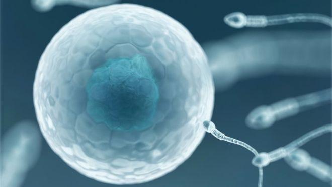Nouvelle-Zélande - VIH: une banque de sperme de donneurs séropositifs